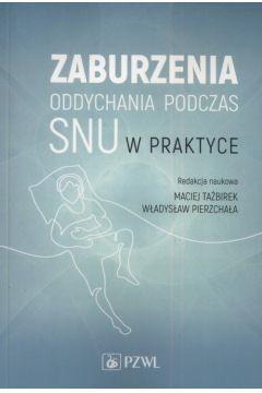 Zaburzenia oddychania podczas snu w praktyce