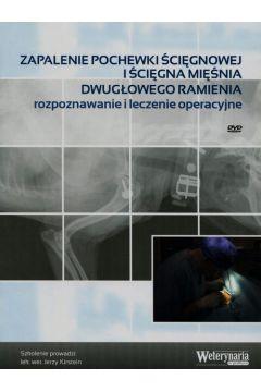 Zapalenie pochewki ścięgnowej iścięgna mięśnia dwugłowego ramienia