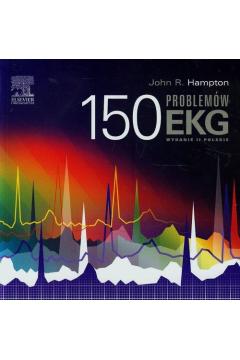 150 problemów EKG