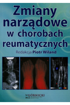 Zmiany narządowe w chorobach reumatycznych