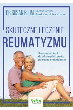 Skuteczne leczenie reumatyzmu
