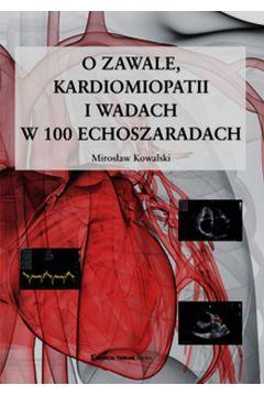 O zawale kardiomiopatii i wadach w 100 echoszaradach