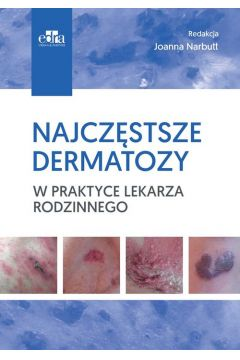 Najczęstsze dermatozy w praktyce lekarza rodzinnego