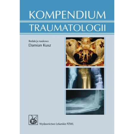 Kompendium traumatologii