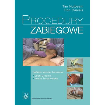 Procedury zabiegowe